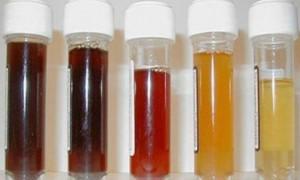 Причины появления кровь в моче у мужчины без боли