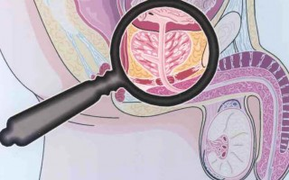 Профилактика и лечение простатита у мужчин