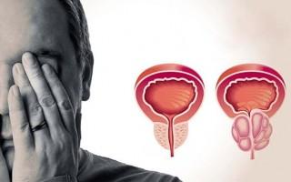 Как быстро вылечить простатит в домашних условиях у мужчин
