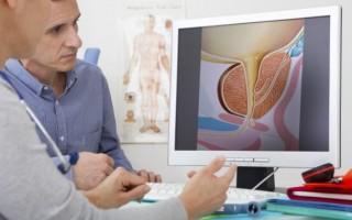 Первые симптомы рака простаты у мужчин — признаки болезни
