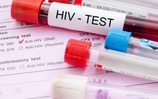 Первые признаки и симптомы ВИЧ у мужчин на ранних стадиях