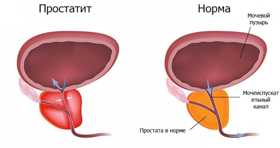 Самые эффективные лекарства при лечении простатита