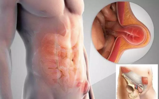 Фото паховой грыжи у мужчин симптомы и лечение болезни