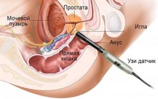 Как проводится биопсия предстательной железы (простаты)