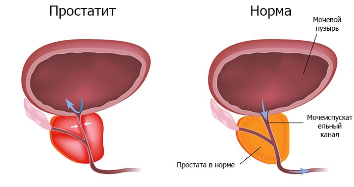 Насколько эффективно медикаментозное лечение простатита