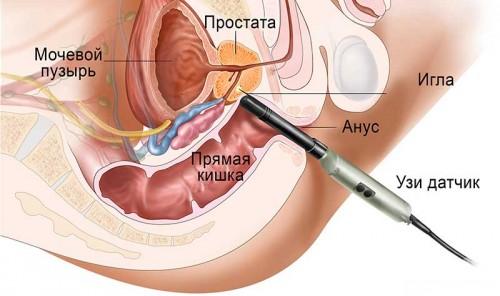 Как берут биопсию предстательной железы