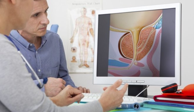 Признаки рака простаты у мужчин